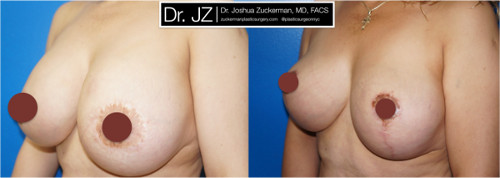 Left oblique view of a before and after of breast augmentation / mastopexy revision surgery Dr. Zuckerman performed. Patient was unhappy with asymmetry from a previous cosmetic surgery procedure, which had also damaged her left nipple. Dr. Zuckerman performed an implant exchange and breast lift. Images taken before surgery and one month after surgery.
