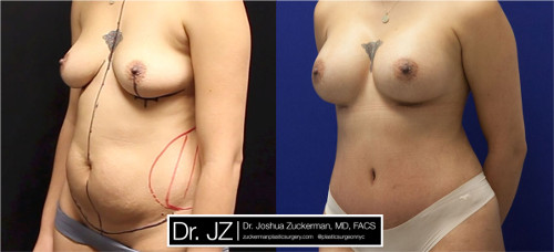Left oblique view of one of Dr. Zuckerman's mommy makeover surgery outcomes where patient had undergone a breast augmentation and tummy tuck. Images were taken before surgery and three months after.