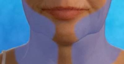 An illustration of the areas that neck lift surgery by Dr. Zuckerman will address.