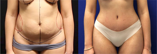 One of Dr. Zuckerman's tummy tuck surgery outcomes from a patient in New York City. Images were taken before surgery and three months after surgery.