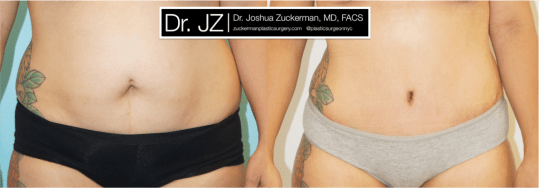 Frontal view of Abdominoplasty patient, female, 2 months post-op.