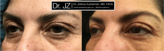 Left oblique view of Blepharoplasty patient, female, 1 month post-op. Also performed fat grafting to the lower eyelids and tear troughs.