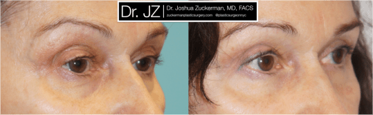 Right oblique view of Blepharoplasty patient, female, 3 months post-op. Upper blepharoplasty with fat grafting to the lower eyelids and tear troughs.