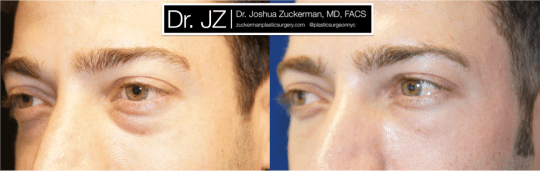 Left oblique view of Blepharoplasty patient, male, 1.5 months post-op. Lower eyelid blepharoplasty with fat grafting to tear troughs. Result will continue to improve until final result around 3 months.