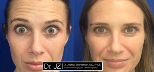 Frontal view of Botox treatment for transverse (horizontal) lines on the forehead. Images taken before treatment and seven days after.