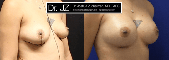 Right oblique view of Breast Augmentation patient, female, 2 months post-op. 300cc Mentor Smooth Round Moderate-Plus Profile breast implants. Submuscular placement. Inframammary fold incision.