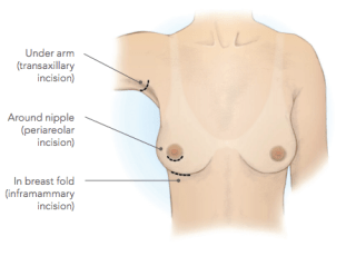 Dr. Zuckerman uses one of three main incision placements for breast augmentation surgery: periareolar (around the nipple), transaxiliary, and inframammary fold incision. The most common incision Dr. Zuckerman uses in his practice in New York City is the inframammary fold incision, but he will discuss which incision might be best for your at your breast augmentation consultation.
