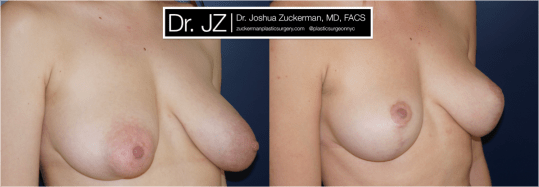 Right oblique view of Breast Lift patient, female, 2 years post-op. Reduced left-side breast asymmetry.