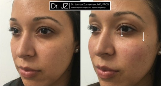 Left oblique view of cheek enhancement patient using Voluma. Restore cheek roundness / youthfulness lost due to flattening and midface descent due to aging. One vial (1cc) injected total. Treatment result is subtle, so arrows are provided.