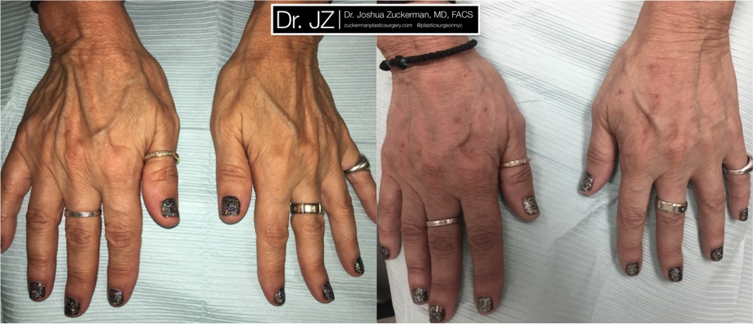 View of hand rejuventation patient. Treatment performed using Radiesse. Reduces the prominence of aging metacarpal bonds, tendons and veins caused by aging. (Note: due to poor photography, light in the after image has been slightly altered to be comparable to the before image.)
