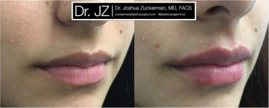 Right oblique view of Lip Augmentation patient, female, day of. Injected 0.7cc of Juvederm Ultra Plus for suble lip augmentation, accentuated philtral columns.