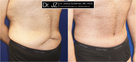 Right oblique view ofAbdominoplasty (Tummy Tuck) / Post-weight loss patient, male, 2 months post-op. Patient had lost 100 lbs prior to surgery.