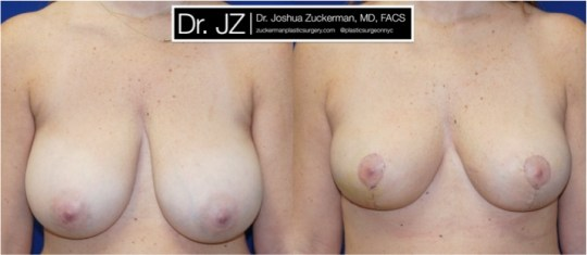 Frontal view of Breast reduction patient, female, 3 weeks post-op. Vertical breast reduction. Post-operative bruising will subside and incisions heal to thin line.