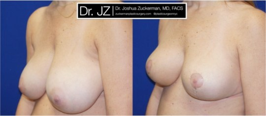 Left oblique view of Breast reduction patient, female, 3 weeks post-op. Vertical breast reduction. Post-operative bruising will subside and incisions heal to thin line.