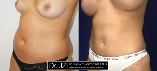 Left oblique view of Mommy makeover' patient, female, 6 months post-op. Breast augmentation with 350cc Mentor Round silicone implants. Liposuction of abdomen and flanks.