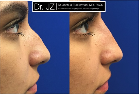 Right profile view of a non-surgical rhinoplasty patient, female. Treatment reduces the prominence of dorsal hump. Juvederm Ultra Plus injected above and below the hump. Images taken day of treatment.