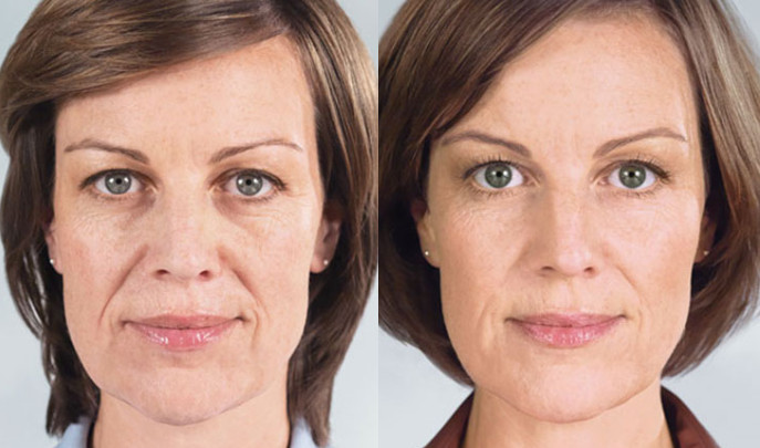 Sculptra official before and after from Galderma. Dr. Zuckerman uses this injectable in his practice in New York City.