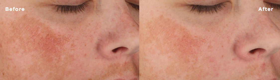 Before and after comparison of Lytera application twice daily for twelve weeks.