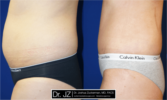 Left profile view of Abdominoplasty patient, female, 2 months post-op. Liposuction of the abdomen and flanks performed as well.