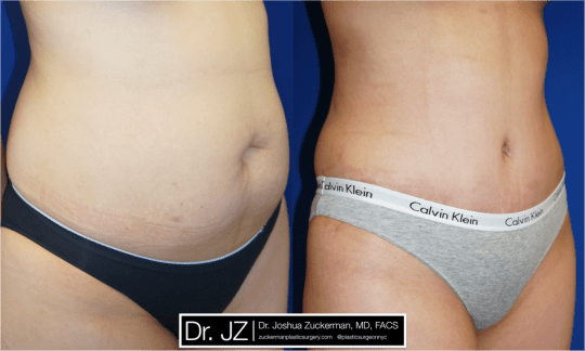 Right oblique view of Abdominoplasty patient, female, 2 months post-op. Liposuction of the abdomen and flanks performed as well.