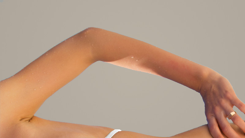 Dr. Zuckerman performs arm lift surgery, or brachioplasty, to improve the aesthetic appearance of the arms and remove excess skin after weight loss or due to aging.