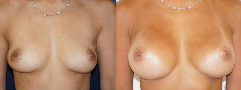 Frontal view of a breast augmentation outcome by Dr. Zuckerman.