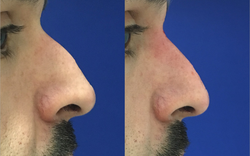 Dr. Zuckerman offers an array of non-surgical and minimally invasive treatments for men including non-surgical rhinoplasty, Botox injections, lip augmentation, laser resurfacing and more.