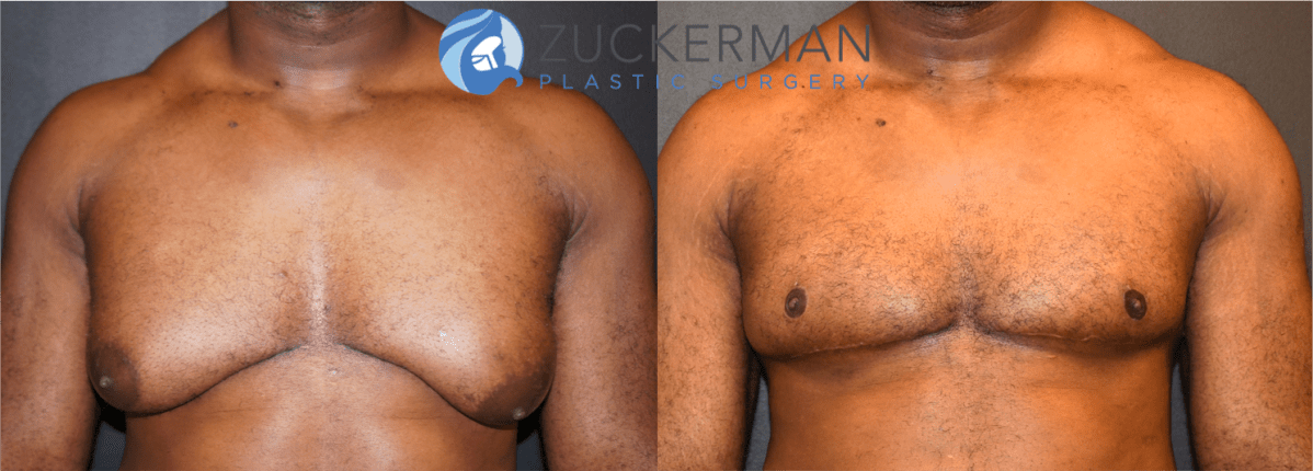 Male Breast Reduction Gynecomastia Nyc Top Ranked Zuckerman