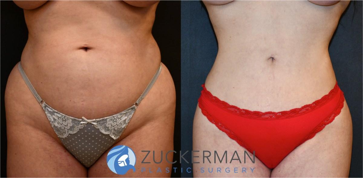 Liposuction Liposculpture Nyc Top Ranked Zuckerman Plastic Surgery