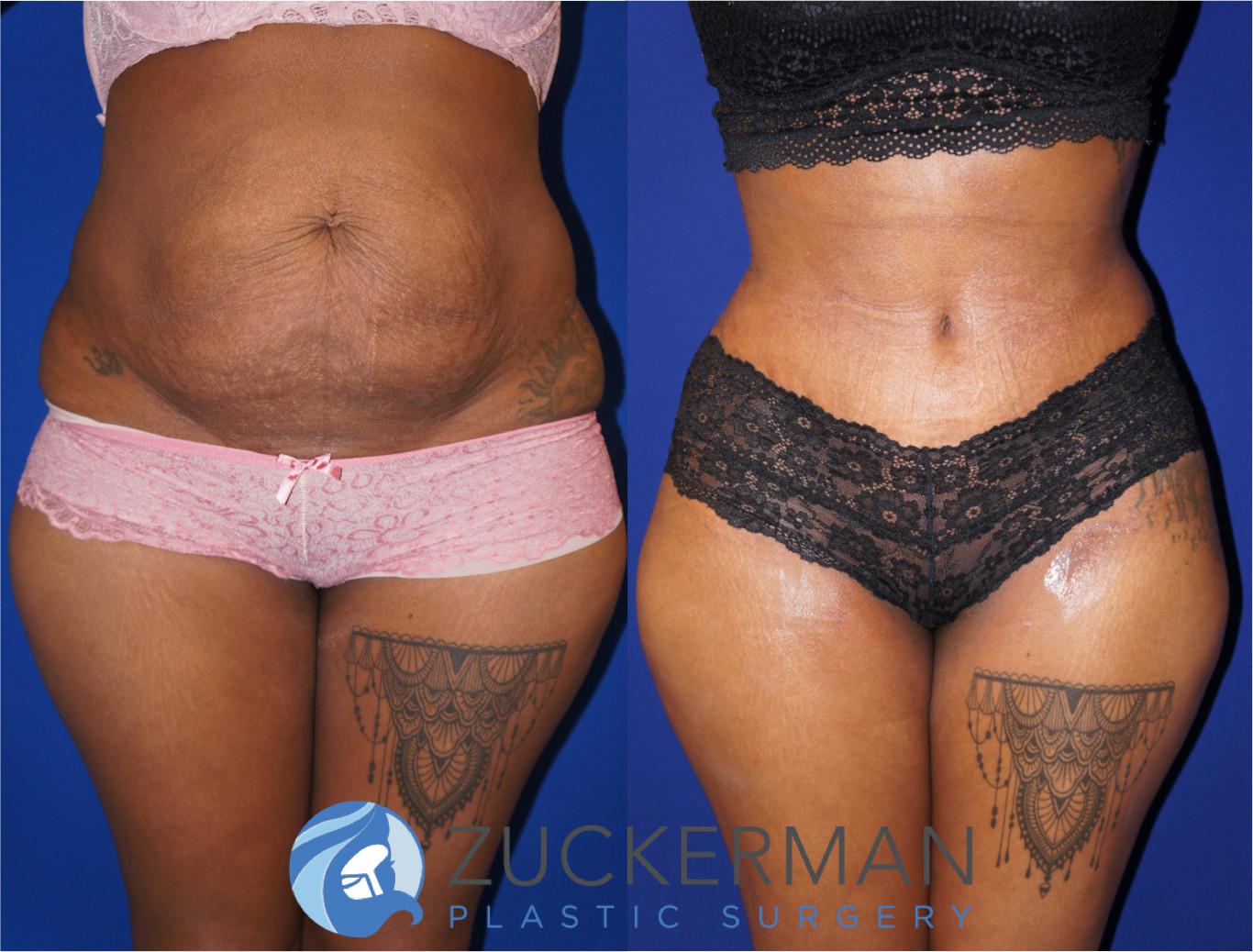 Tummy Tuck Abdominoplasty Nyc Top Ranked Zuckerman Plastic Surgery