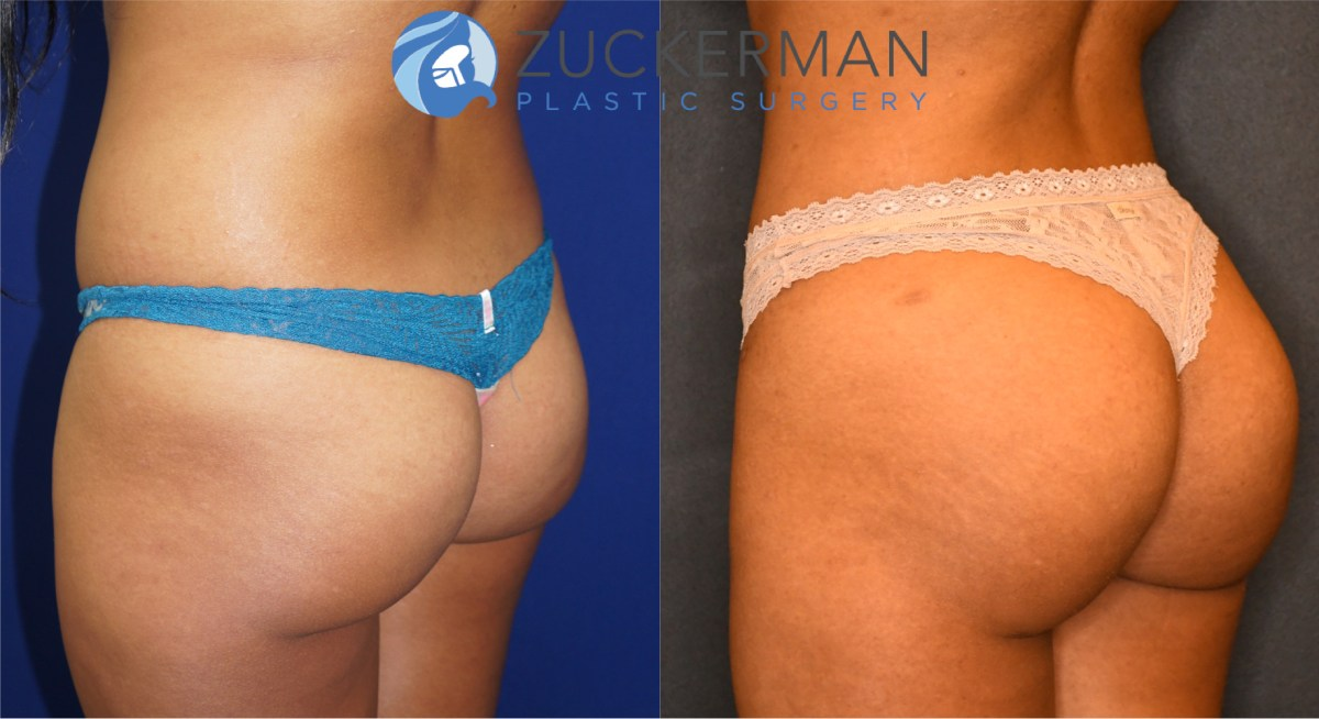 Buttock Augmentation & Brazilian Butt Lift (BBL) NYC – Top