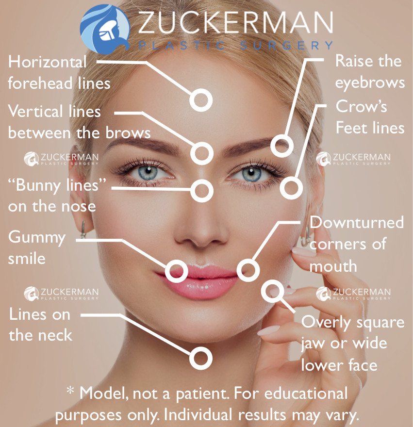 Botox Cosmetic Injections Treatment Nyc Top Ranked Zuckerman