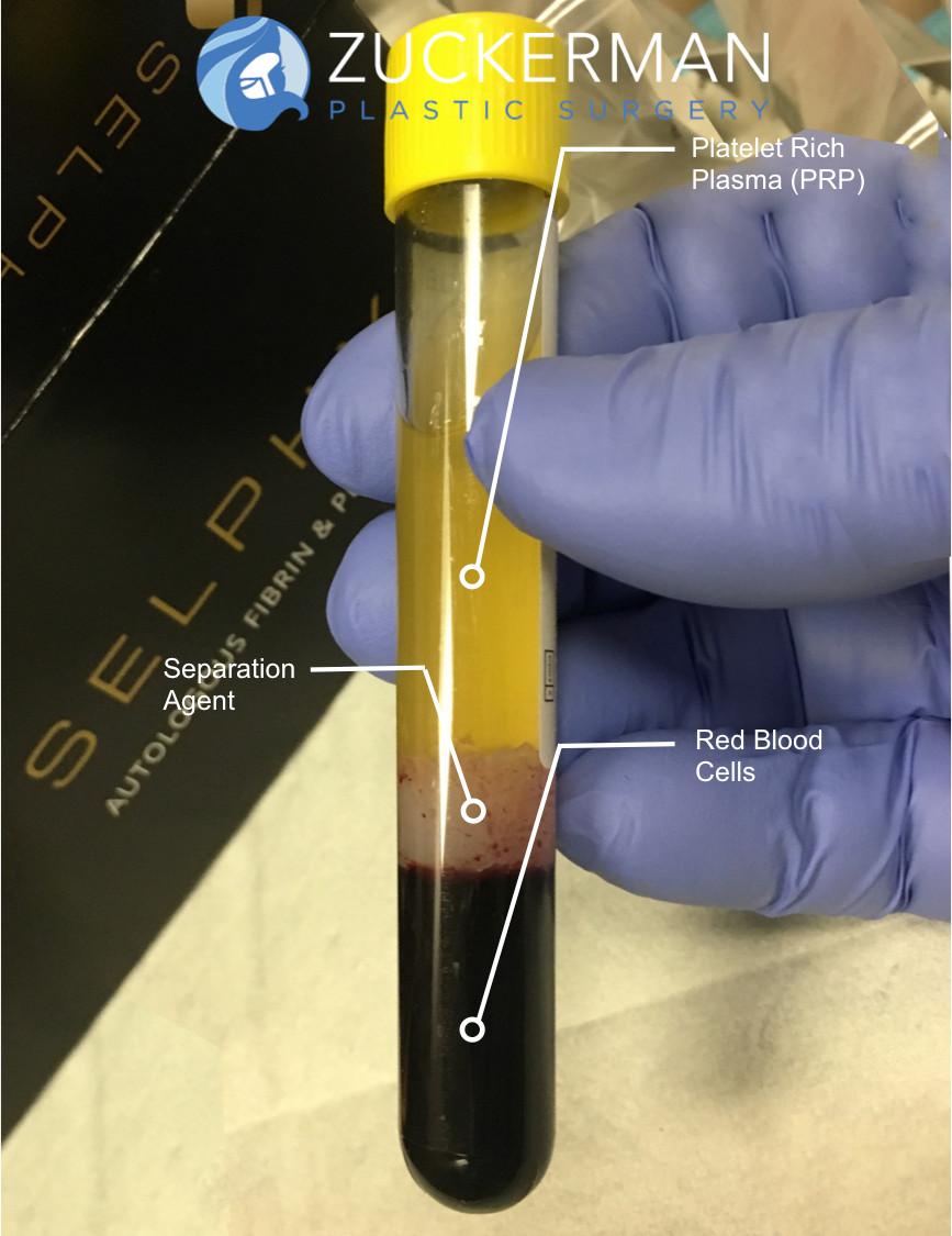 Platelet Rich Plasma Prp  Vampire Facial Nyc  Top Ranked Zuckerman Plastic Surgery-2689