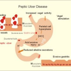 Pathophysiology Of Peptic Ulcer Disease Diagram Kenmore 80 Series Dryer Belt New Human Physiology Ch 22