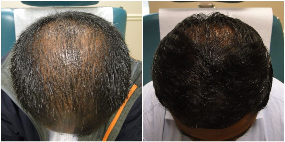 PRP Before and after 12