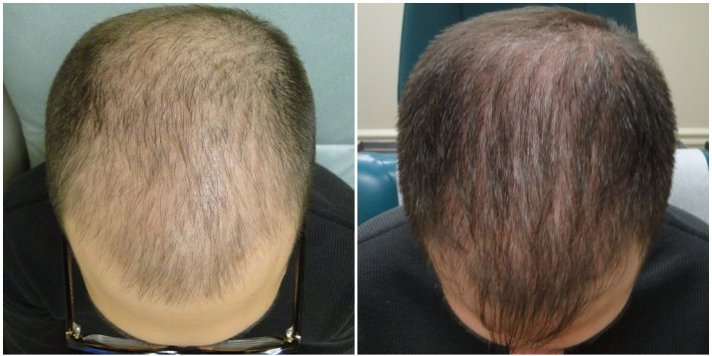 PRP Before and after 13