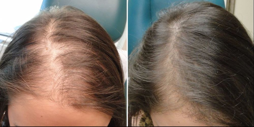 PRP Before and after 3