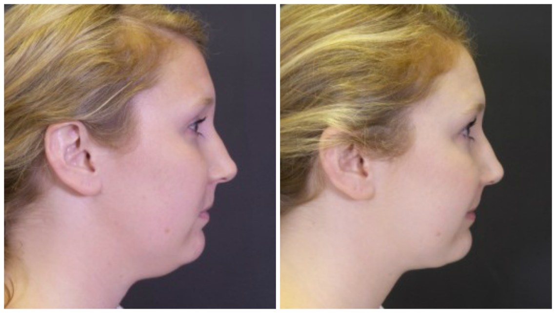 How To Get Rid Of A Double Chin 19 Facts About Chin Facial Liposuction