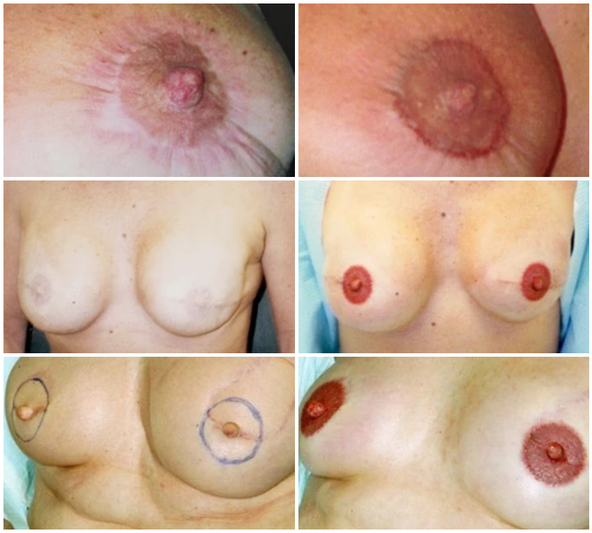 nipple tattoo before and after