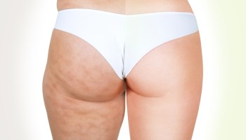 Body Contouring Examined Liposuction Vs Coolsculpting