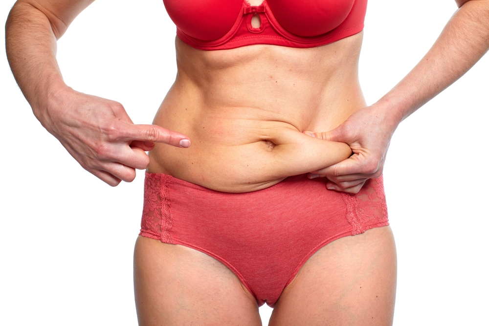 When Good Results Turn Bad Tightening Loose Skin After Liposuction