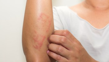 How to Get Rid of Scabies: Causes, Prevention, and Home