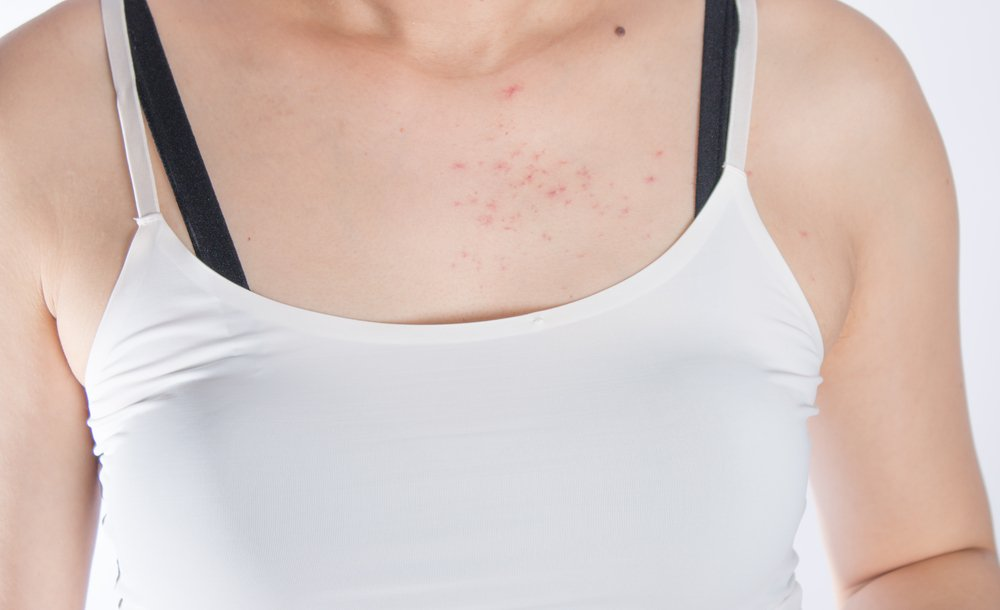 What Is Fungal Acne Causes Symptoms And Treatments