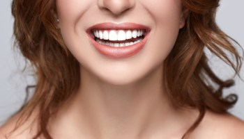 What's A Smile Worth? The Pros and Cons of Gold Teeth Implants