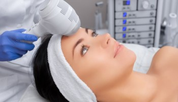 Photofacial: Types, Benefits, Side Effects, and Recovery