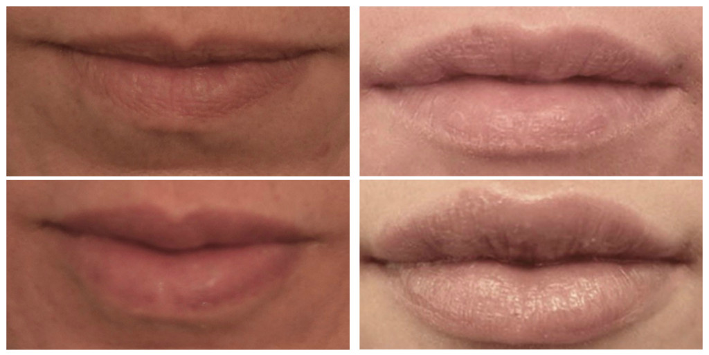 before and after resthylane silk lip injections