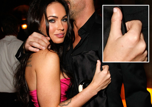 Megan Fox has a clubbed thumb, not to be confused with a clubbing fingernail.