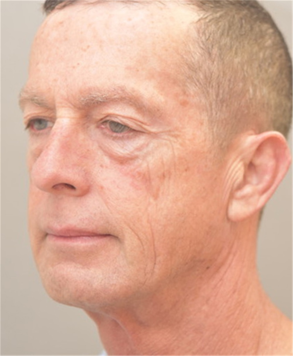 Facelift Before and After Photos by Arthur Jabs. MD. PhD; Bethesda. MD - Case 37651 | ASPS