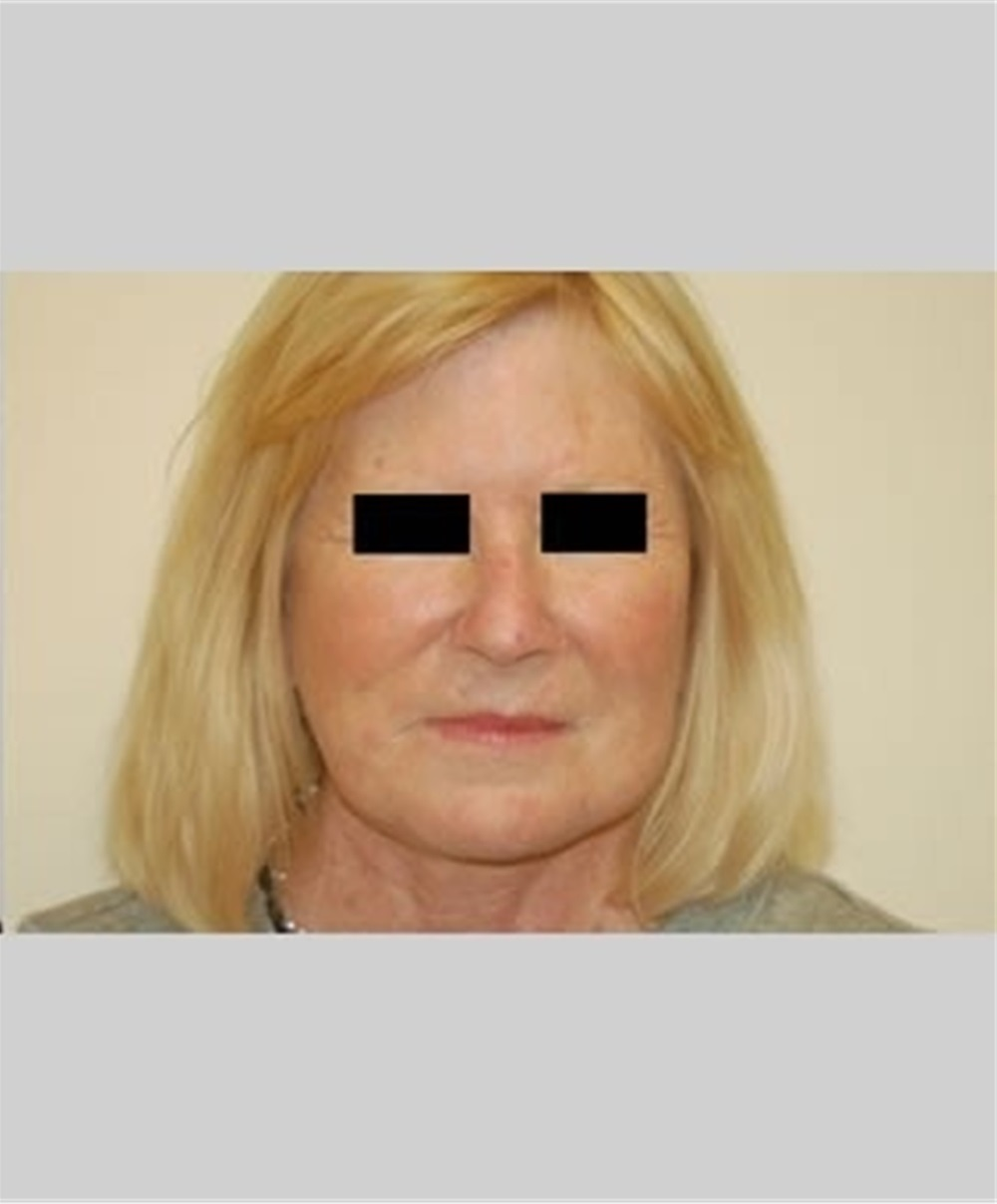 Facelift Before and After Photos by Thomas Zewert. MD. PhD; Monterey. CA - Case 36672 | ASPS