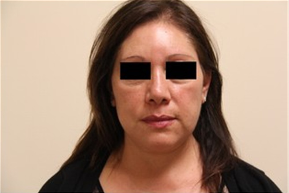 Facelift Before and After Photos by Thomas Zewert. MD. PhD; Monterey. CA - Case 42571 | ASPS